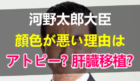 河野太郎大臣の顔色が悪い理由はアトピー!父親への肝臓移植も原因の一つか?次期総理大臣候補